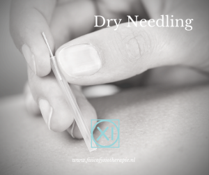 Dry Needling Zoetermeer